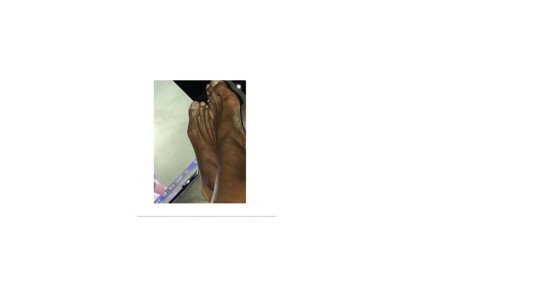 Husen's feet