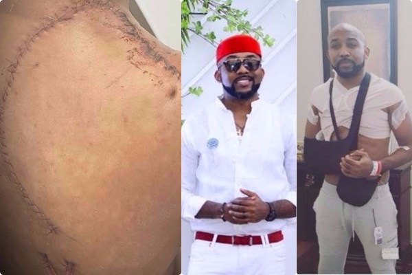 Im-still-in-a-little-bit-of-pain-Banky-W-speaks-on-his-Skin-cancer-surgery-Lailasnews